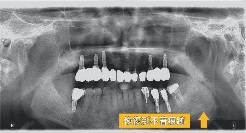 智齒到底該不該拔? 智齒竟然長出腫瘤?