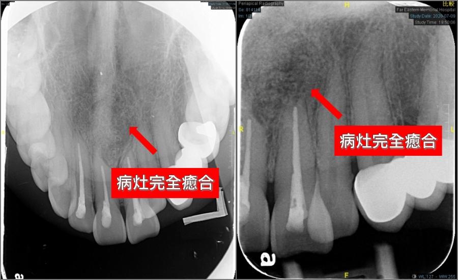 牙齒竟然數目會比別人多